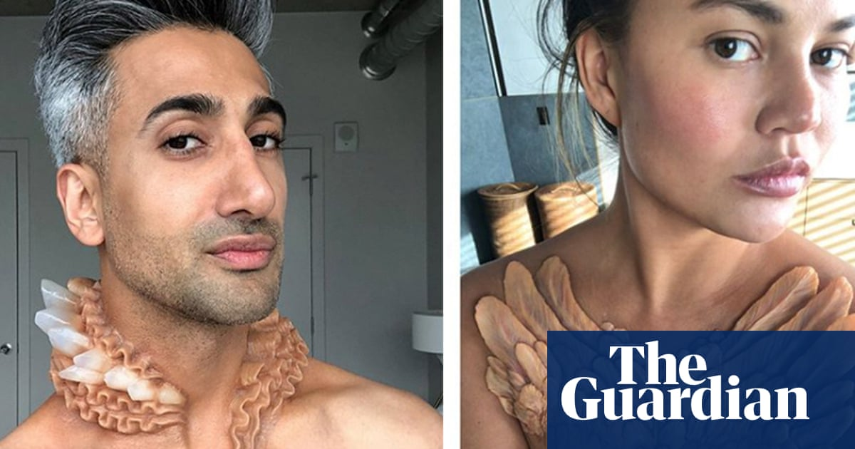 Growth potential: celebrities sprout skin 'implants' for New York