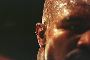 Evander Holyfield's right ear after Mike Tyson bit it during their world heavyweight title fight in Las Vegas, June 1997.