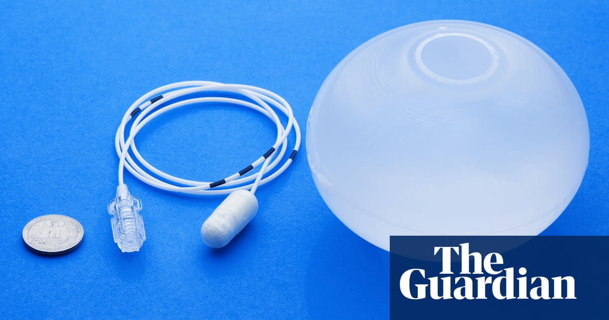 Swallowable Gastric Balloon Could Help The Obese Lose Weight Without