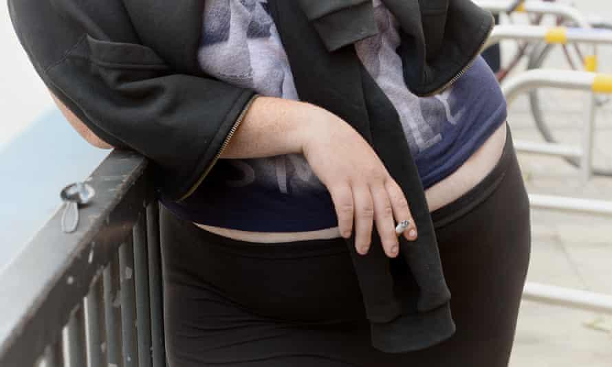 Obese woman smoking cigarette