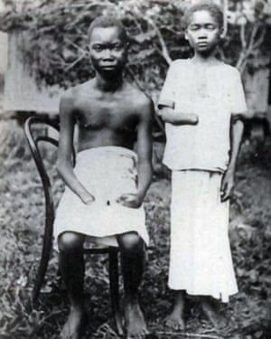 Congolees amputees, pictured about 1900. Amputation was frequently used as punishment in the Congo Free State, controlled by Leopold II.