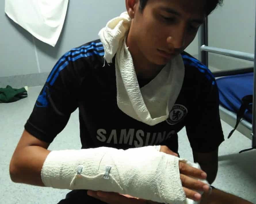 Loghaman, one of the youngest refugees held on Manus Island, says he was assaulted by a guard at the East Lorengau Refugee Transit Centre in a fight over washing power.