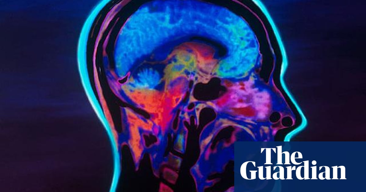 New test for 'growth mindset', the theory that anyone who tries can
