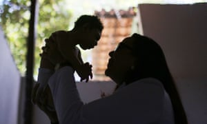 A doctor holds up a baby with microcephaly.