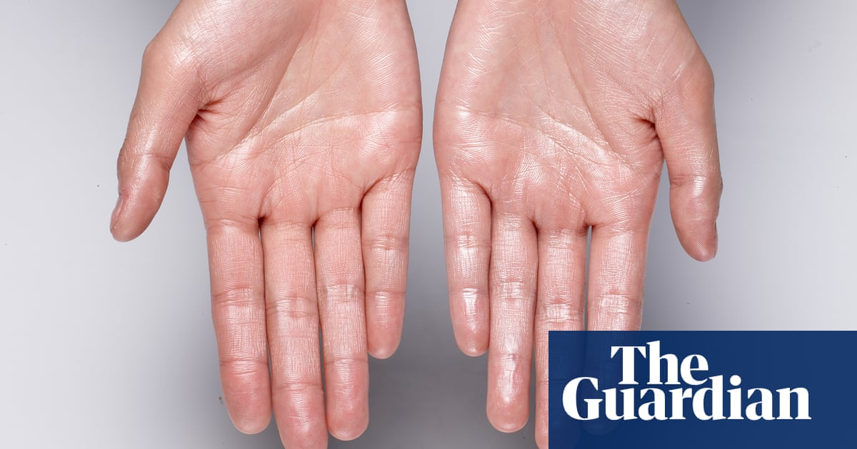 Pores for thought: how sweat reveals our every secret, from what we've eaten to whether we're on drugs