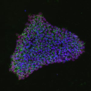 Induced stem cells labeled with fluorescent tags.