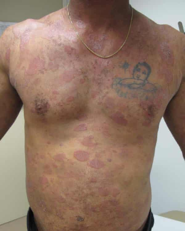 Dewayne Johnson developed lesions on his body and cancer after exposure to Monsanto products.