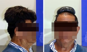 Man held in Spain over attempt to smuggle cocaine under his wig