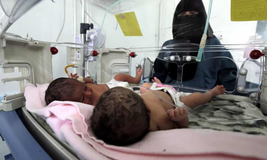 A doctor attends to newborn twins at a therapeutic feeding centre in a hospital in Sana'a, Yemen