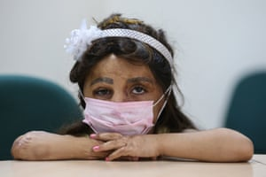 A Syrian girl with burn injuries poses after a tissue transplant a hospital in Antalya, Turkey
