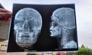 An x-ray of skull of Asrar Ahmad Khan's skull