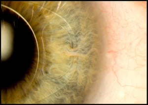 This photograph of the human eye, titled Intraocular lens 'iris clip', shows a surgically implanted structure that can correct or restore vision. Different types of intraocular lenses can be used to tackle different conditions such as short-sightedness and even cataracts.