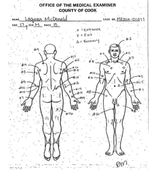 This undated autopsy diagram shows the location of wounds on the body of Laquan McDonald.
