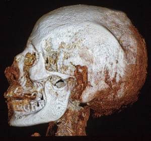 A CT scan of the mummy's head