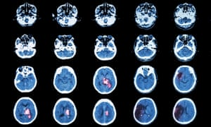 Scans showing the effects of hemorrhagic and ischemic stroke.
