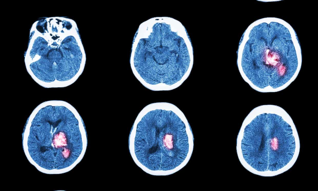 CT scans, such as these, are more routinely used to diagnose stroke. But because ultrasound scanners can be made portable, it has advantages for doctors operating outside hospitals.