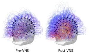 Information sharing across all electrodes before and after vagus nerve stimulation (VNS). On the right, the warmer colours indicate an increase in connectivity among brain regions responsible for planned movements, spatial reasoning and attention.