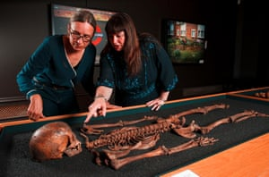Jelena Bekvalac, curator of human osteology at the Museum of London and Emily Sargent, curator at Wellcome Collection, check the skeleton of a female aged between 17-25 years old from Crossbones in Southwark who suffered the ravages of syphilis.