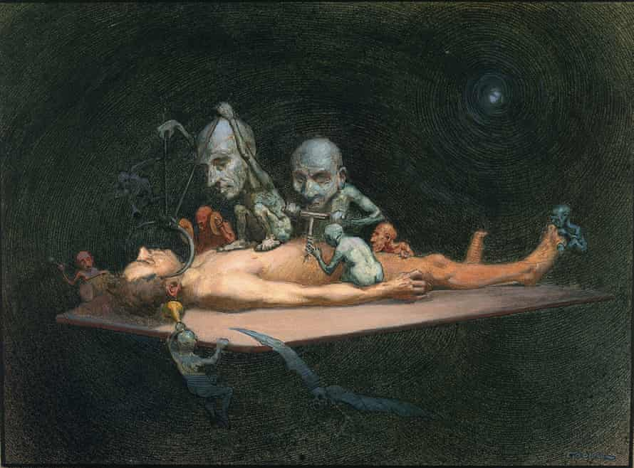 An Unconscious Naked Man Lying on a Table Being Attacked By Little Demons Armed With Surgical Instruments; Symbolising the Effects of Chloroform on the Human Body, by Richard Tennant Cooper, 1912.