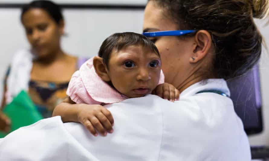 A baby with microcephaly in Recife earlier this year.