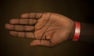 A coloured wristband on the arm of an asylum seeker, which indicates that they are entitled to meals at Lynx House.