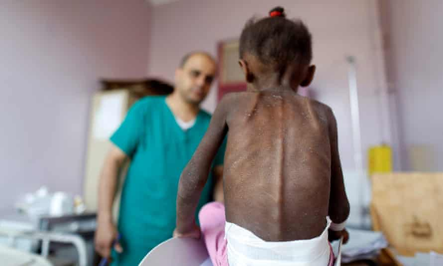 A nurse looks on as a malnourished girl is weighed at a malnutrition treatment centre in Sana'a, Yemen