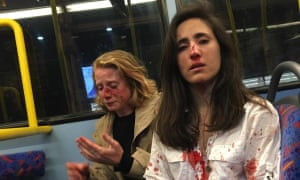 Melania Geymonat (R) and her girlfriend, Chris, after the attack on a bus in West Hampstead.