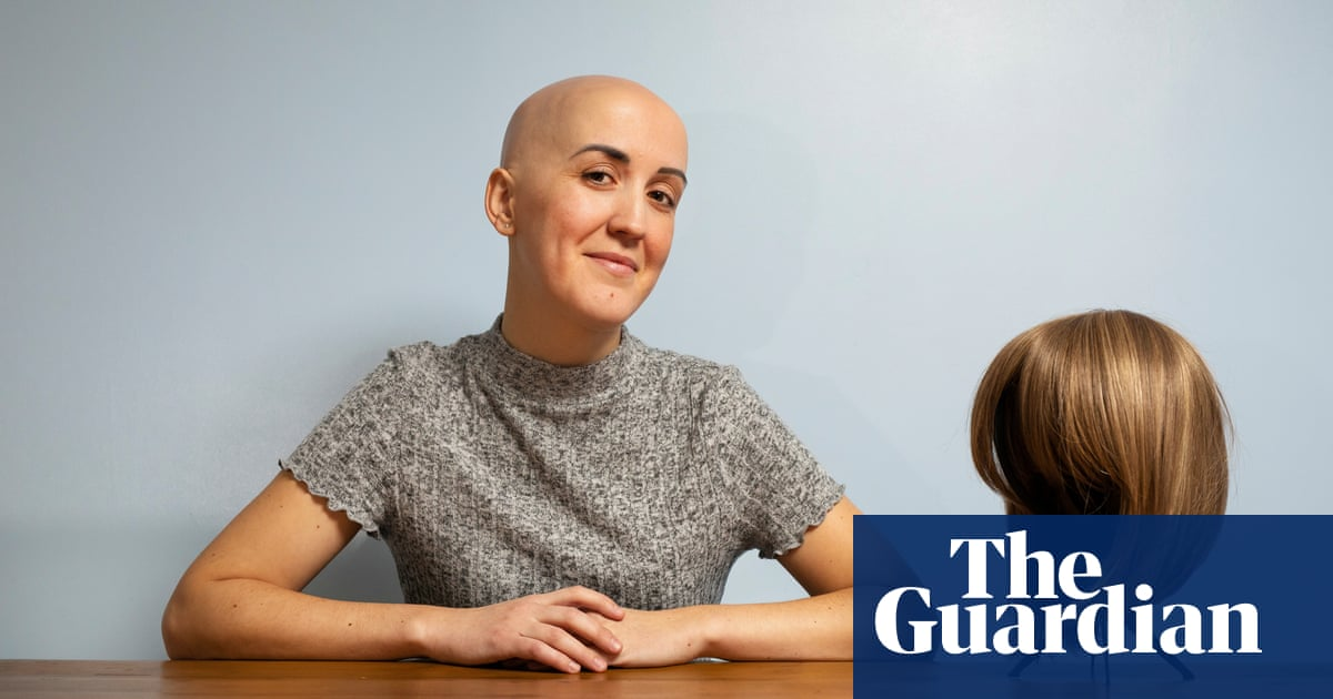 It Takes A Thick Skin To Rock A Bald Head Meet The Women