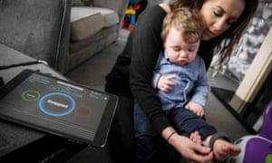 Georgina Coulson putting the PulseGuard sensor on her baby son's ankle to monitor his heartbeat and help prevent seizures.