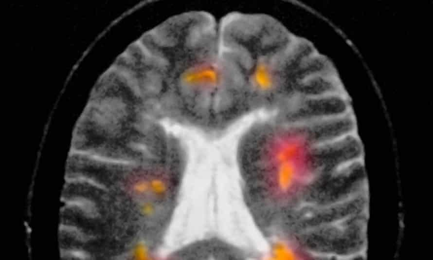 A MRI scan shows a patient with multiple sclerosis. The disease destroys the protective myelin coating of nerves in the brain and spinal cord.