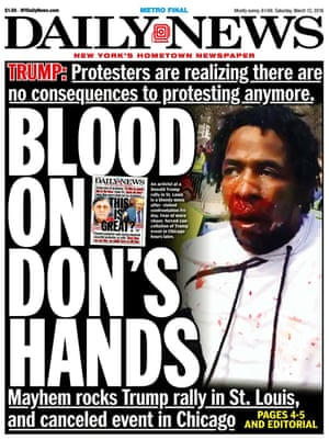 """Blood on Don's hands."""