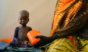 A malnourished child is fed a special formula by her mother at a regional hospital in Baidoa.