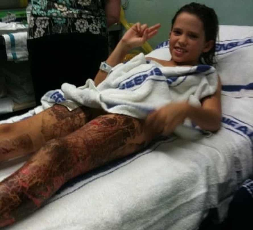 Rachael Shardlow after being stung by a box jellyfish.