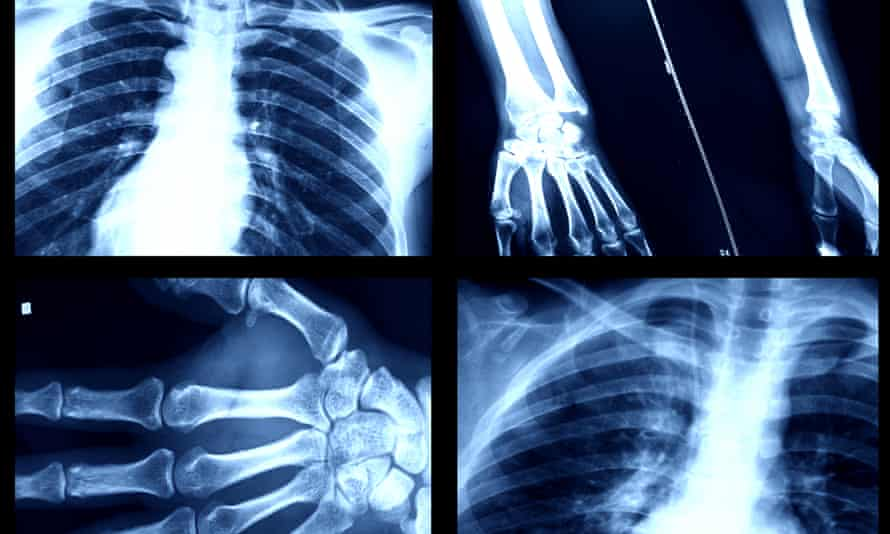'There on the silver screen, / like a photograph of the human soul' … x-ray images.