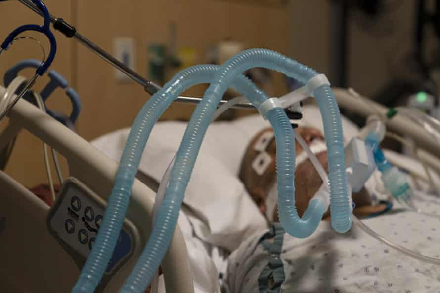 Ventilator tubes are attached to a Covid-19 patient at Providence Holy Cross medical center in the Mission Hills section of Los Angeles last month.