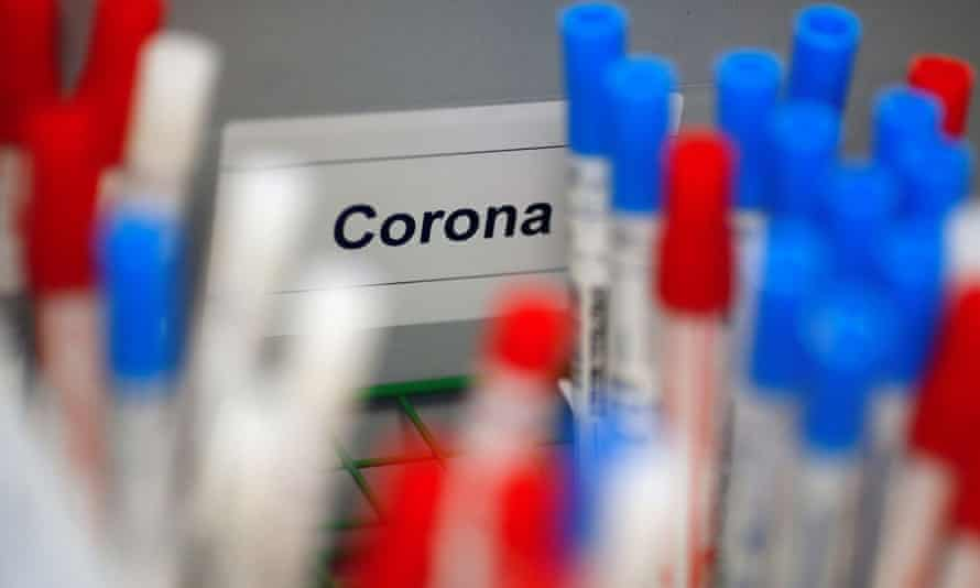 Plastic vials containing tests for the coronavirus are pictured at a medical laboratory in Cologne, Germany.