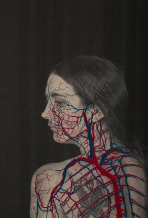 Distaff.02 (Circulatory System), 2017
