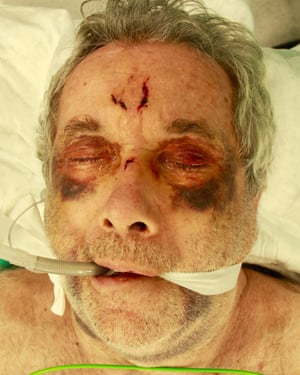 Martin Bell in hospital after the accident.