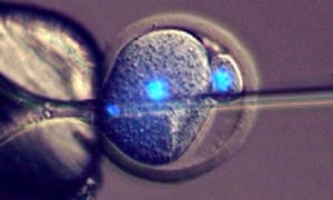 An image showing the injection of sperm into a parthenogenetic mouse embryo
