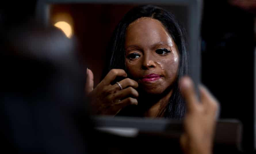 Laxmi, 28, a survivor of an acid attack in India, campaigns for Stop Acid Attacks. Seen here ahead of her catwalk appearance at the GMPS Foundation Fashion Show in London in 2016.
