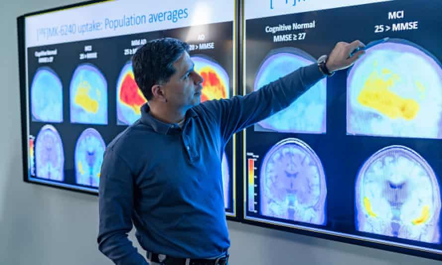 Brain scan images at Biogen's headquarters in Cambridge, Massachusetts