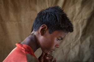 Gora Mir, 12, who suffered a machete wound to the back of his neck