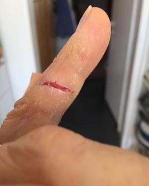 Healed cut on wedding finger.