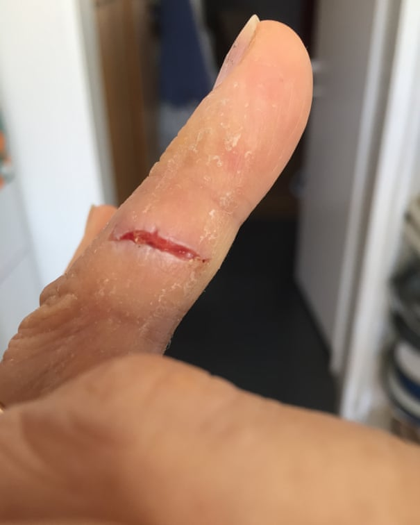I peeled my finger instead of the coconut': readers on their