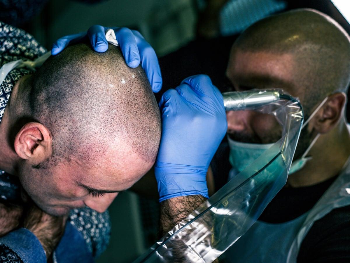 Men with tattoos bald Bald men