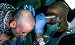 Going bald? There's a tattoo for that | Life and style | The Guardian