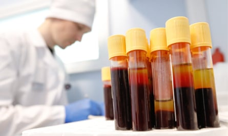 Blood samples collected in Moscow as part of Russia's Stop HIV/AIDS campaign. Photograph: Artyom Geodakyan/TASS via Getty Images