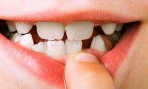 Child shows teeth