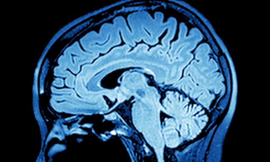 An MRI scan of the brain: 'Our complex genetic inheritance puts us all on a continuous spectrum of risk'