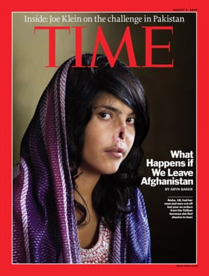 This image provided by Time magazine shows the cover of the Aug. 9, 2010 issue, with a photo of Aisha, an 18-year-old Afghan woman. Aisha's nose and ears were cut off in 2009, under orders from a local Taliban commander acting as a judge, as punishment for fleeing her husband's home.